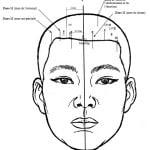 craniopuncture-leszones-ant