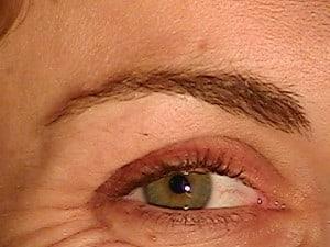 point blanc al interieur de la paupiere 28 images orgelet ou chalazion ou acn 233 psoriasis