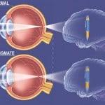 astigmate_2
