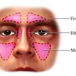 soigner-sinusite-sinus1