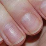 psoriasis ongles main