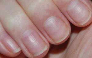 psoriasis ongles main