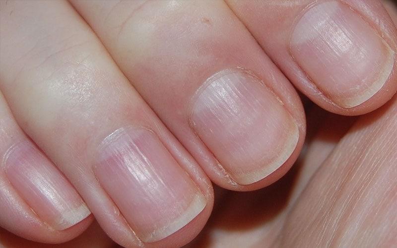 Mycose des ongles ou psoriasis ? Faire la différence pour mieux soigner.